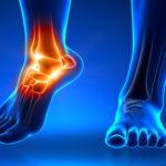 Pilates en la rehabilitación de esguinces